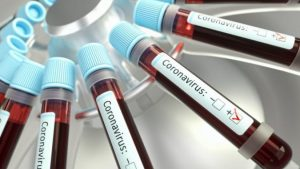 Five staff of Multimedia Group test positive for Covid-19