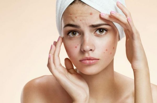 How To Treat Acne In 3 Days