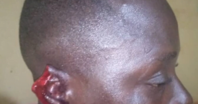 Police Officer Chews and Swallows Drinking Spot Owner's Ear Over Cost of Alcohol - SEE PHOTOS
