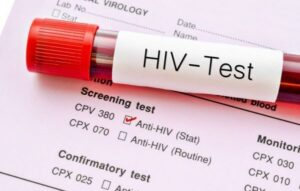 Ghana AIDS Commission CRIES Over Few Number of Persons Living With HIV/AIDS On Medication Out of 345,534 Positive Recorded