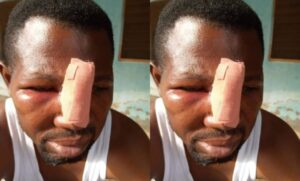 Nungua: JHS Student And His Gang Attack Teacher Over Homework